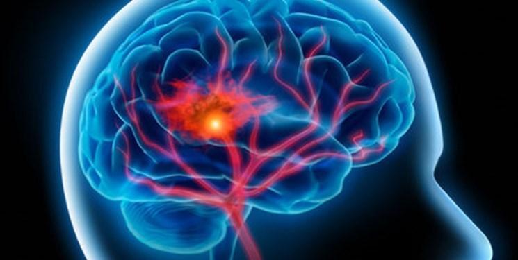 برگزاری کارگاه شیوه های پیشگیری از سکته مغزی